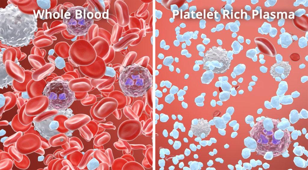 plasma-arricchito-di-piastrine-platelet-rich-plasma